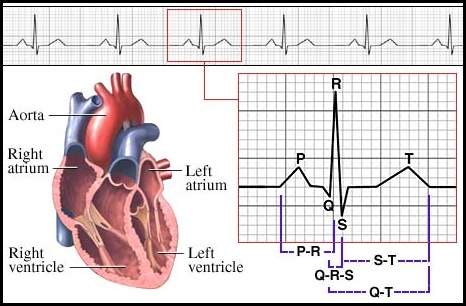 ECG - Electrocardiogram